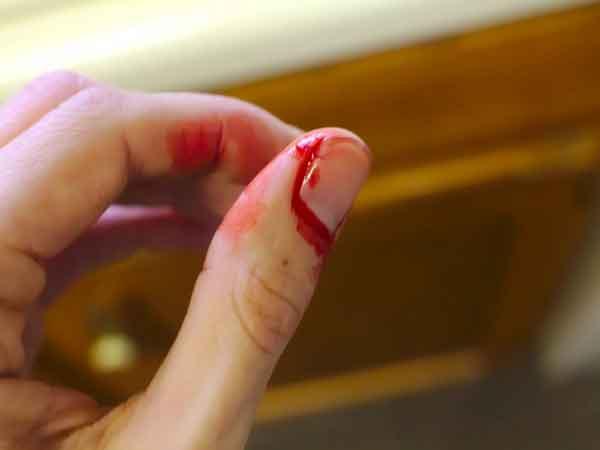 Bị đứt tay là điềm báo tốt hay xấu? Nên làm gì khi đứt tay?