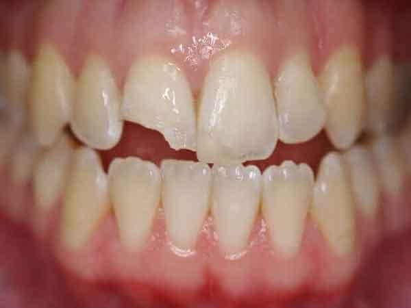 mẻ răng là điềm gì?