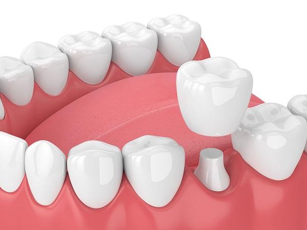 Nằm mơ thấy răng giả có ý nghĩa gì trong cuộc sống